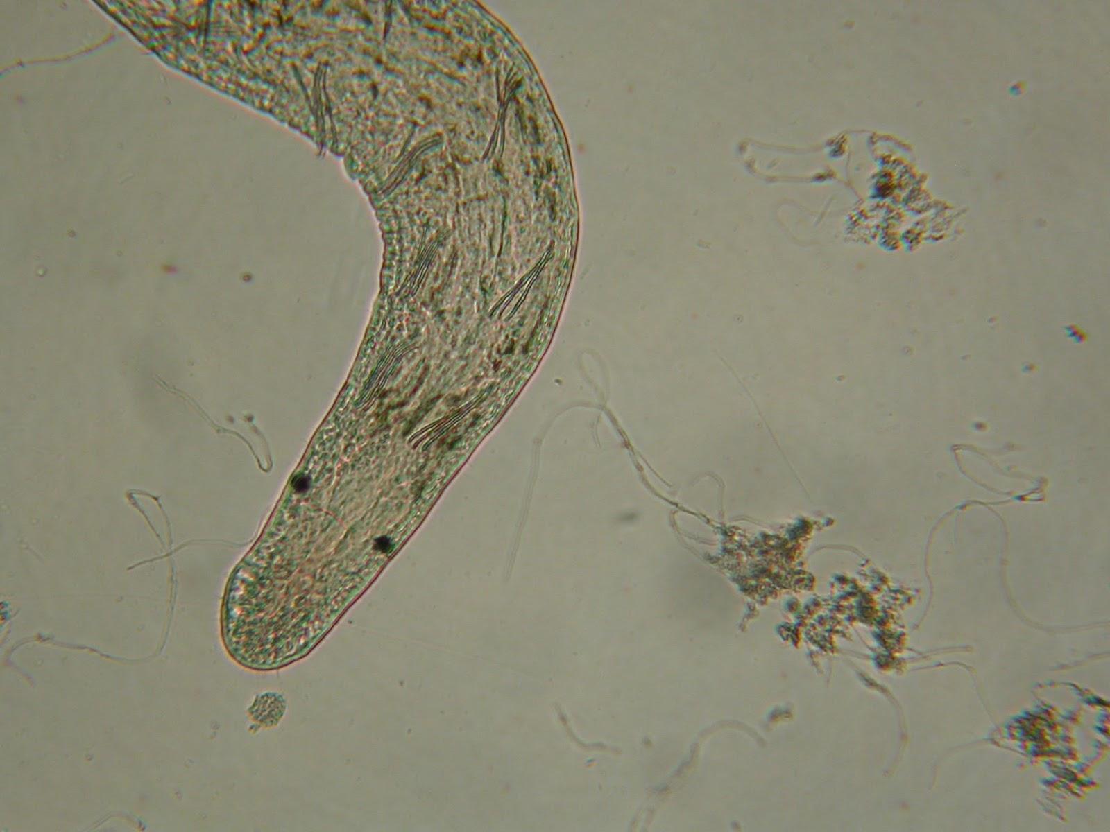 megjelenhetnek férgek kenet vétele az enterobiasisban gyermekeknél