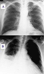 paraziták a tüdőben tünetek