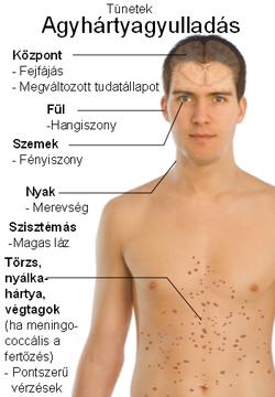 típusú fertőző paraziták