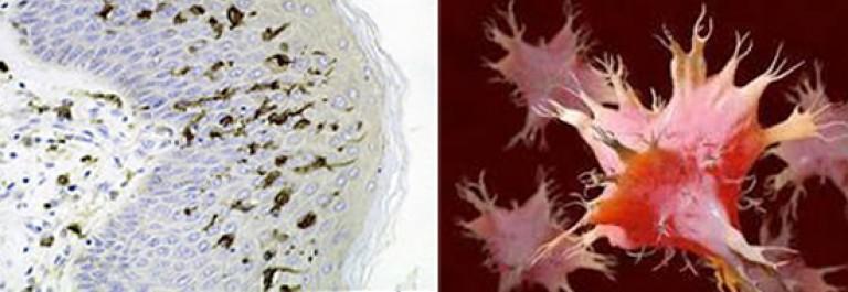hogyan lehet javítani a pinworms elleni immunitást krónikus vagy akut diphyllobothriasis