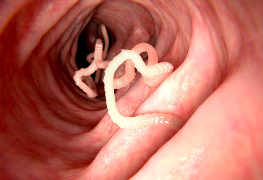Cérnagiliszta-betegség - Éjszaka jelentkező végbéltáji viszketés