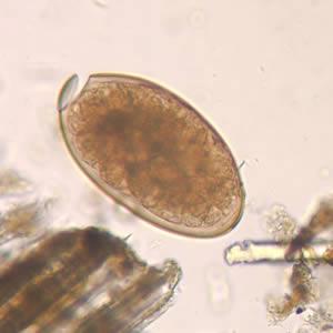 fascioliasis latinul)