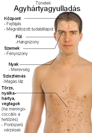 fertőzések tünetei)