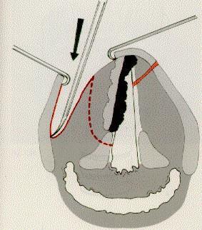 oropharyngealis garat tampon dekódolása