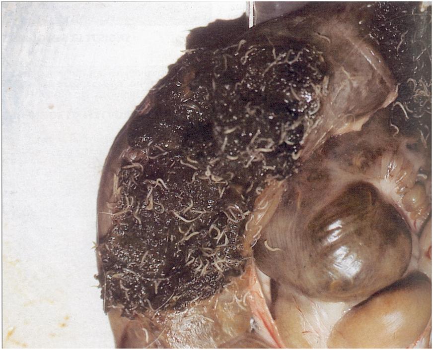 féreg pinworm kezelés