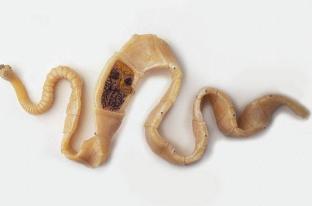 Paraziták a testünkben | TermészetGyógyász Magazin