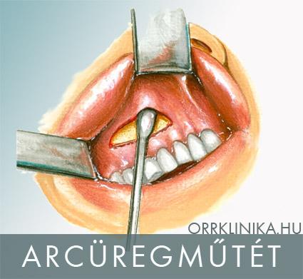 férgek az orrban tünetek kezelése)