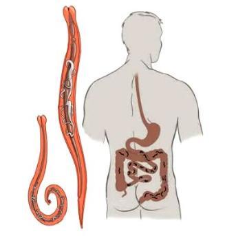 férgek eltávolítása a testből, minden típusú az emberi test parazitai