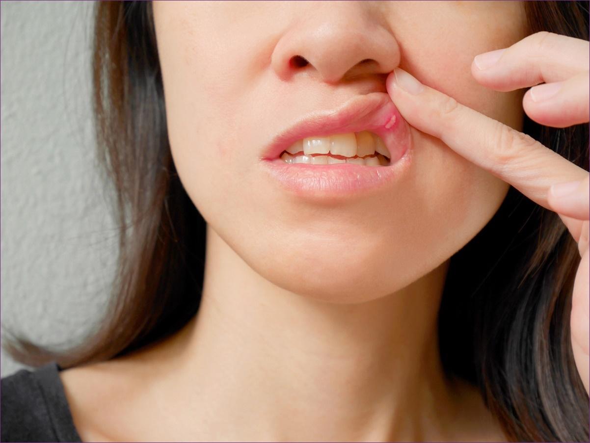 gennyszag a szájból okokat és kezelést)