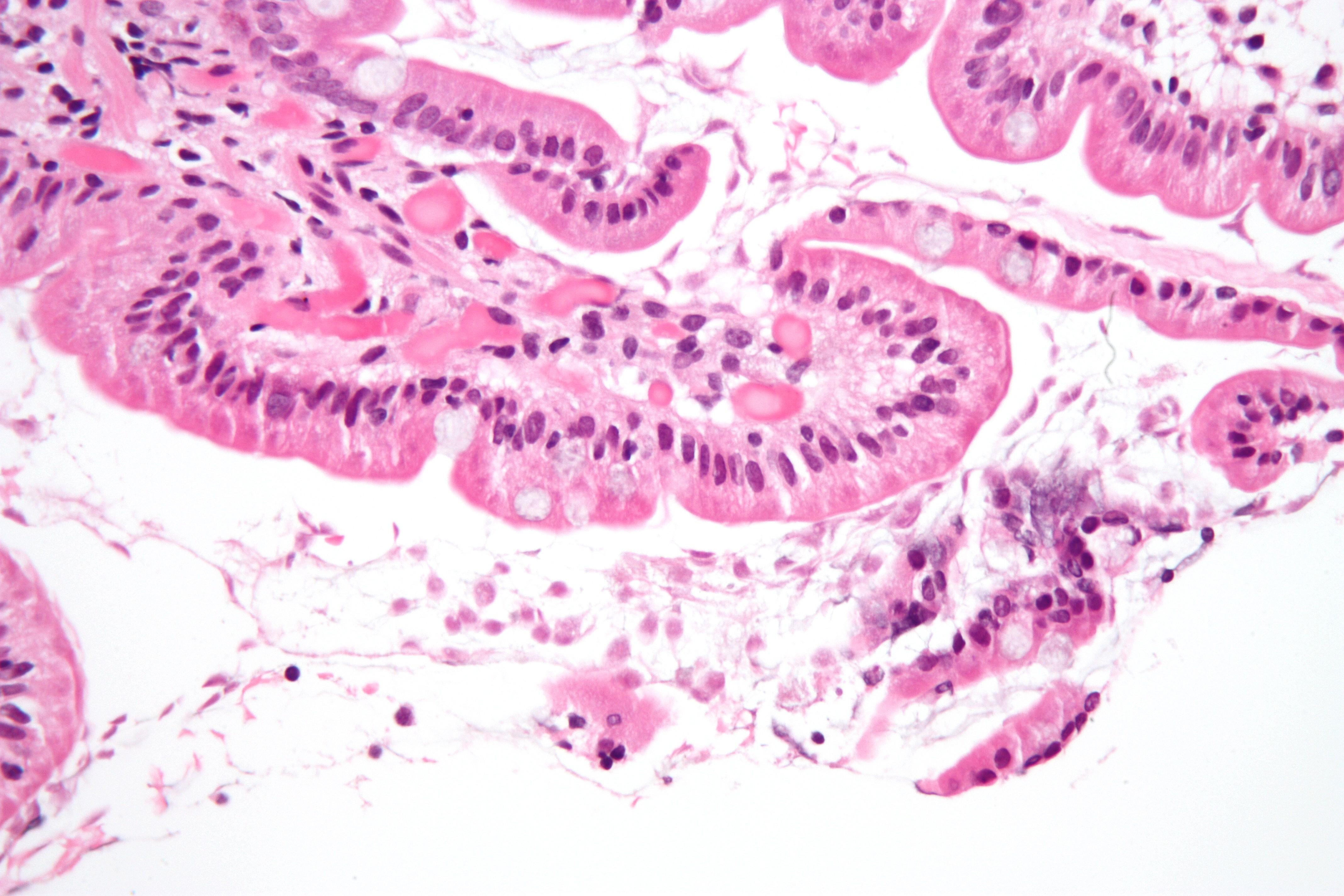 giardia colon histology haldokló paraziták