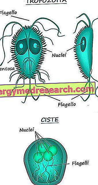 Giardiasis tünetei és kezelése, Mi a giardiasis?