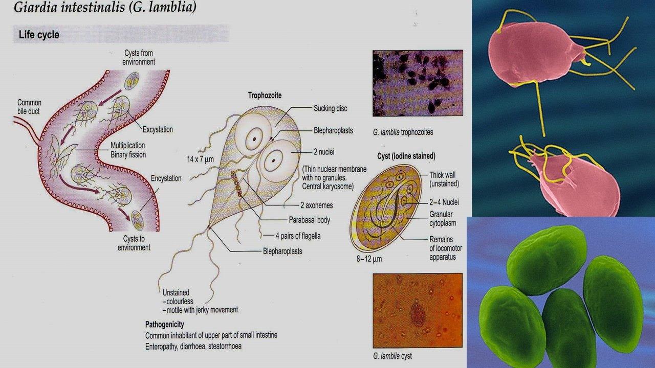 giardia parasite causes)