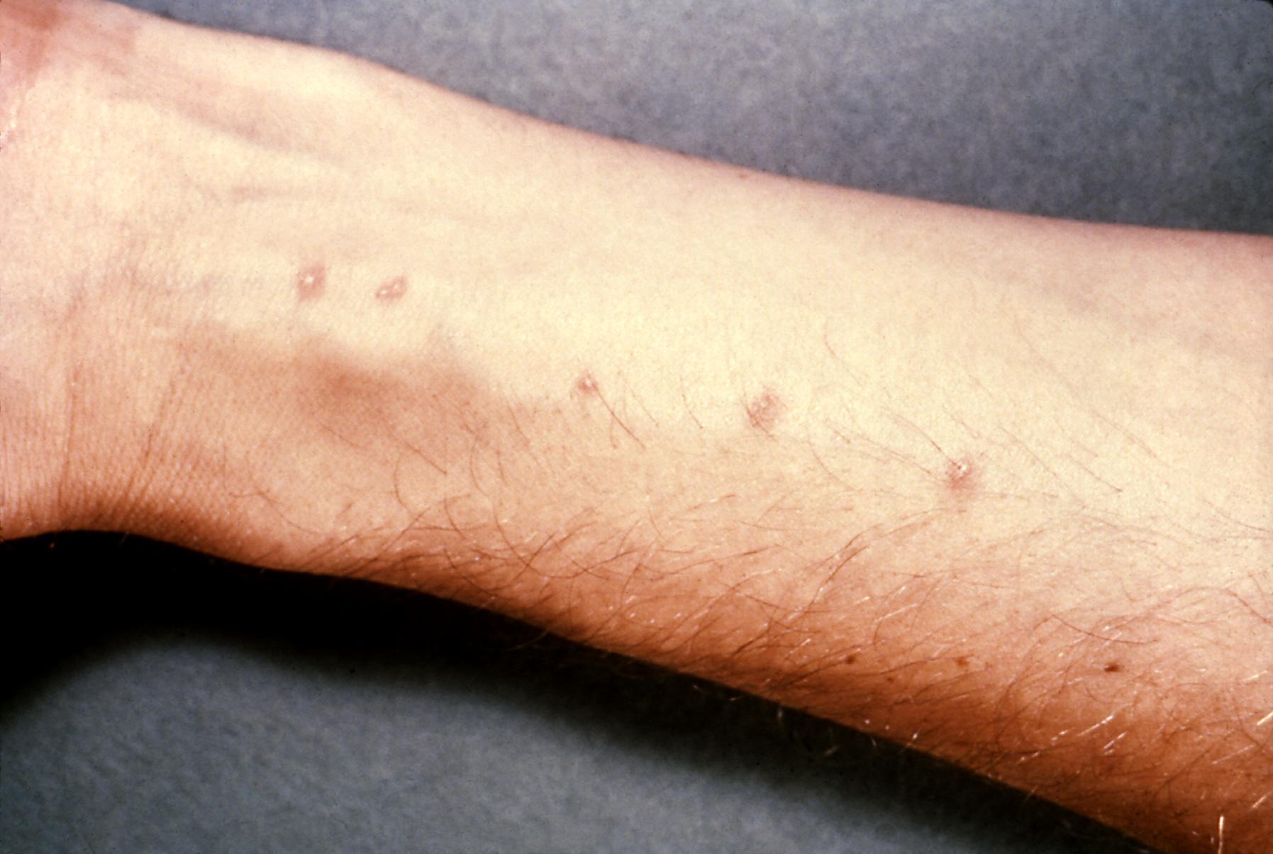 Pustcular Psoriasis kezeles kaposztaval- Pustcular Psoriasis kezeles kaposztaval