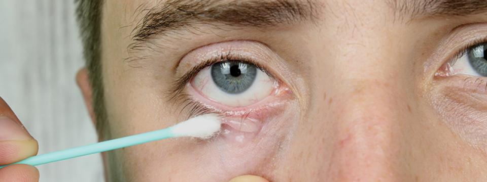 helminth a szem tünetei)