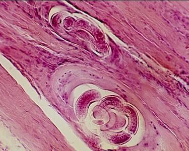 izomszövet trichinella