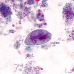 Teszt Giardia Lamblia (bél-parazita) - WebÁruhárays.hu