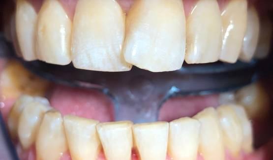 Szájszag: több betegség első tünete is lehet   Smile Design Center