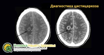 parazitá az agyban