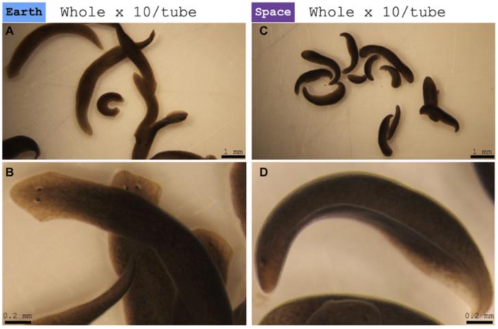 Pinworms férgek és azok eltávolítása Pinworm férgek kezelése