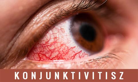 helminták szemében tünetek gyermekekben a férgeket akkor kezelik, ha