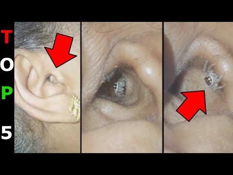 Helminták típusai és leírása, Az étkezési betegségek, a helminthiák megelőzik őket