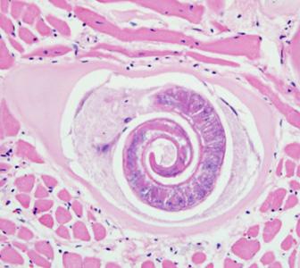 Enterosorbensek giardiasishoz, Pajzsmirigy trichinella