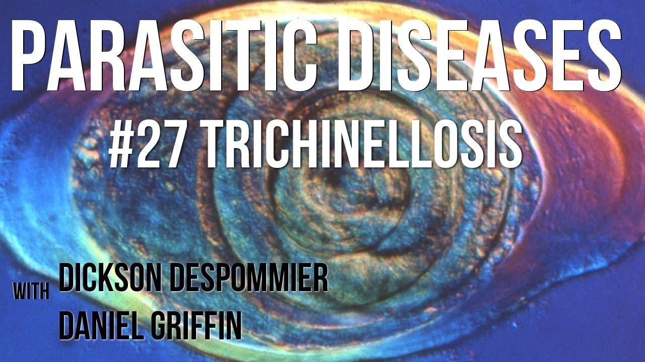 trichinosis mi ez és hogyan kell kezelni