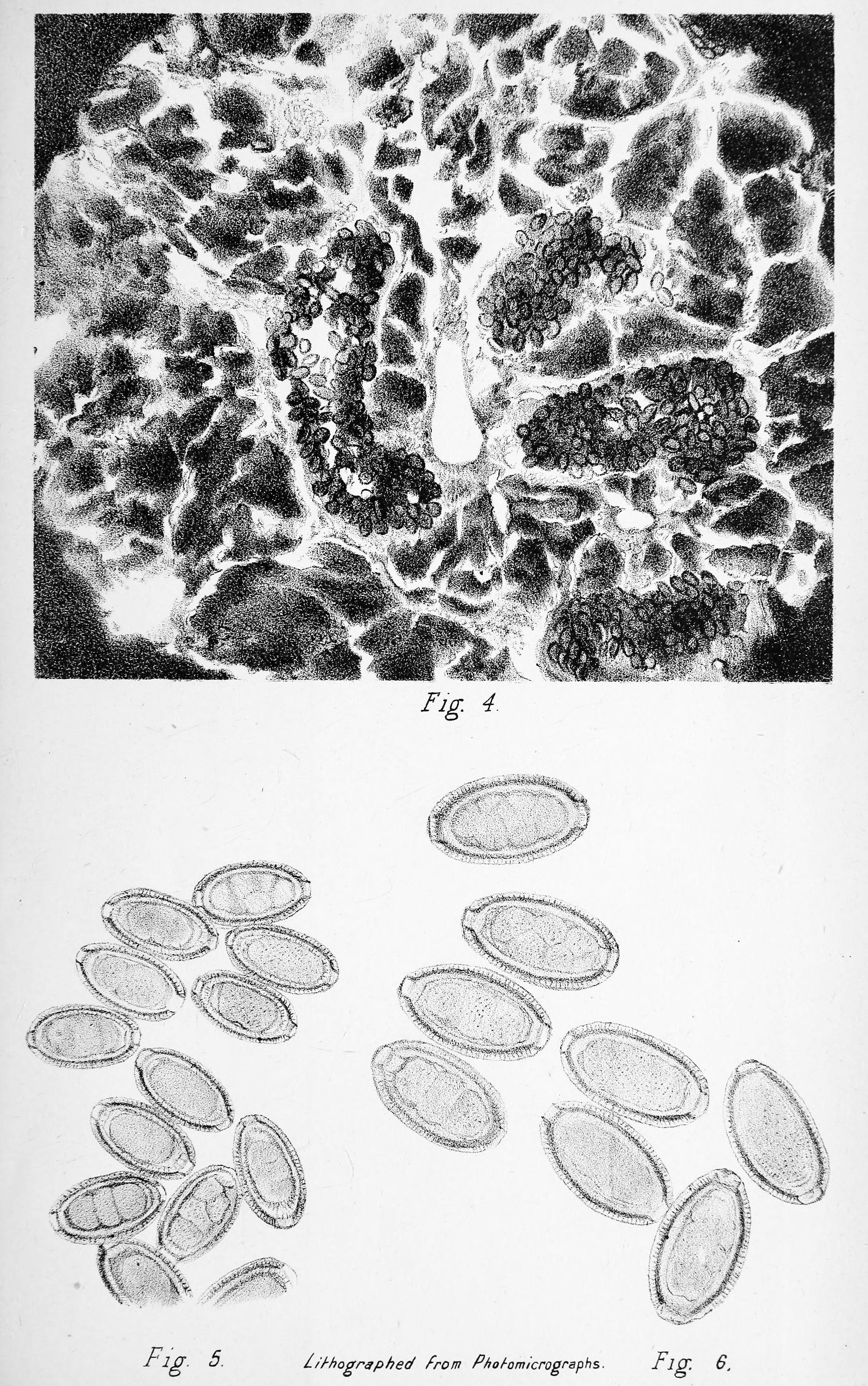 trichocephalosis hogyan néz ki)