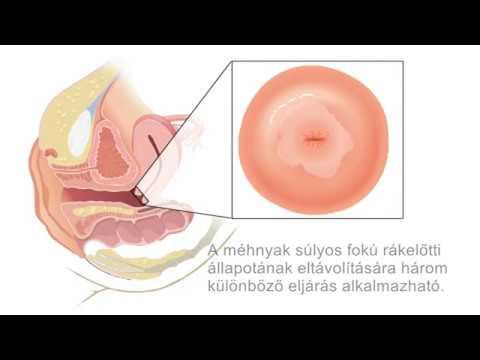 A helminthiasis tünetei felnőttek kezelésében, Távolítsa el a helmintákat a szervekről